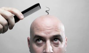 Can Balding Hair Grow Back Dubai Abu Dhabi