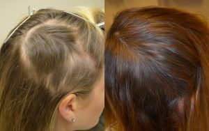 Does PRP Help Hair Grow
