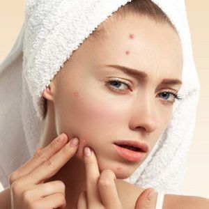 Pimples Treatment in Dubai