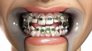 Looking for an Orthodontist: Considerations to Make