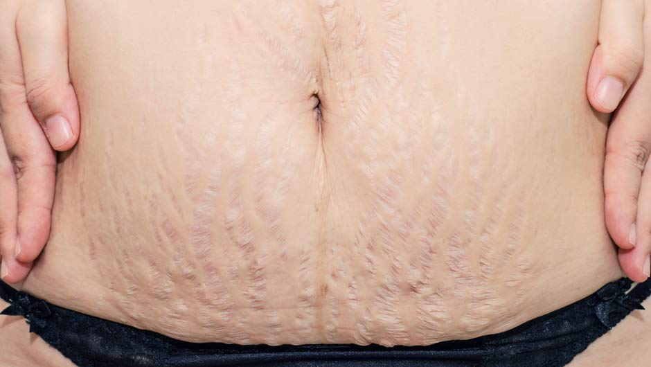 Stretch Marks 101    Article Source: http://EzineArticles.com/6664767